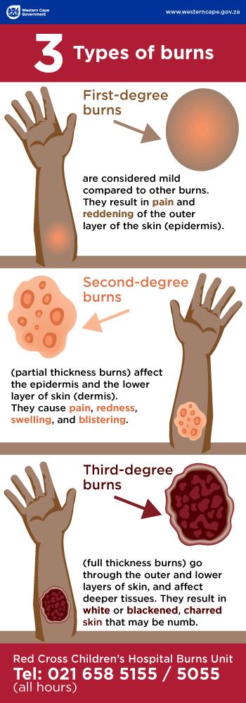 Burns Infographic