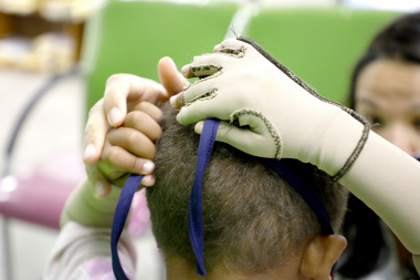 A young patient learning to tie his mask allows him to practice his fine motor skills