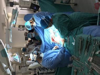 GSH transplant